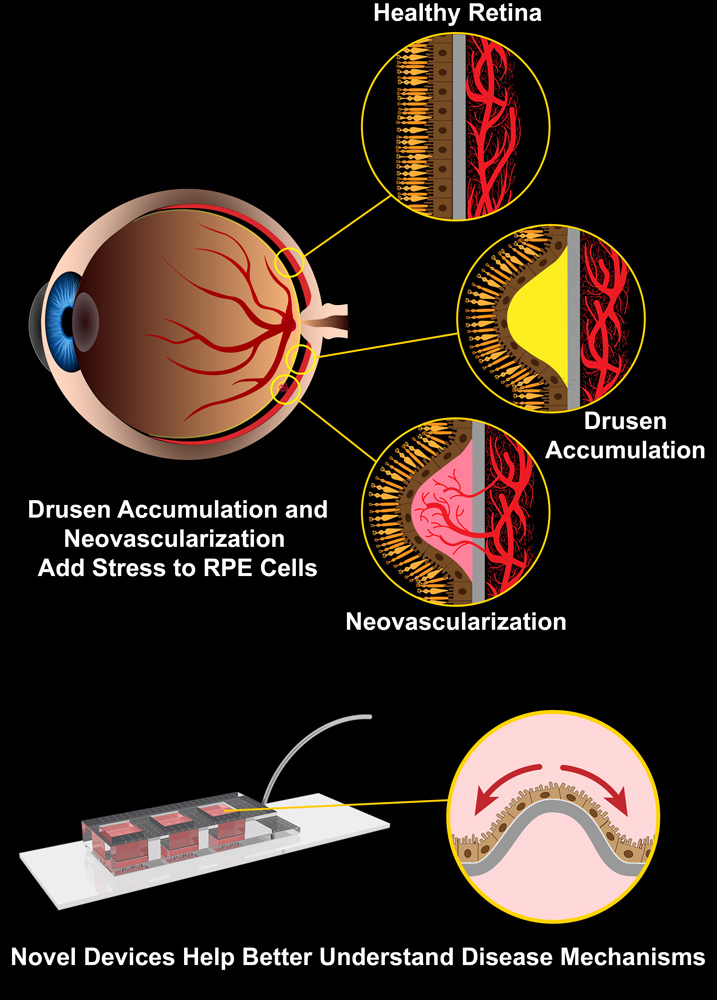 Eye diagram: Healthy retinal, Dursen Accumulations and Neovascularization Add Stress to RPE Cells Drusen Accumulation, Neovascularization Novel Devices Help Better Understand Disease Mechanisms